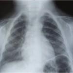 Spondyloepiphyseal Dysplasia cong2