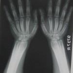 Fig.2 Both Fore arm with wrist and hands