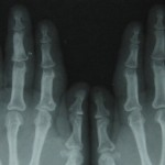 Fig.7 Hands Zoomed view