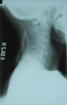 Fig.1 Cervical spine Lateral view
