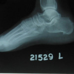 Fig.6 Left foot- lateral view
