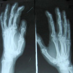 fig.9 Both hands -oblique view