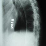 Fig.9 Thoracic spine-Lateral view-samepatient